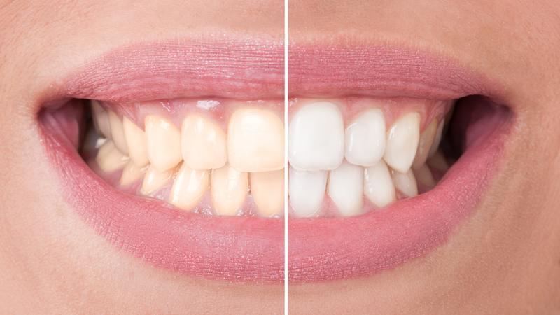 Trattamento Sbiancamento Dentale Professionale Dal Dentista
