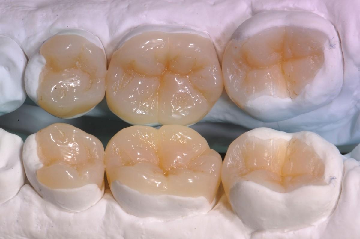 tipologia di intarsio dentale
