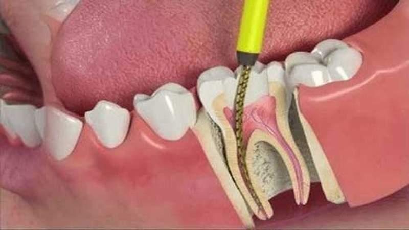 Devitalizzare Un Dente: Quando Si Ritiene Necessario