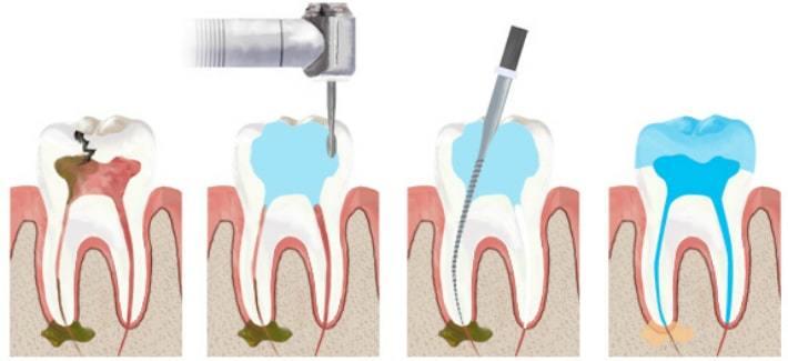 devitalizzare un dente passo per passo