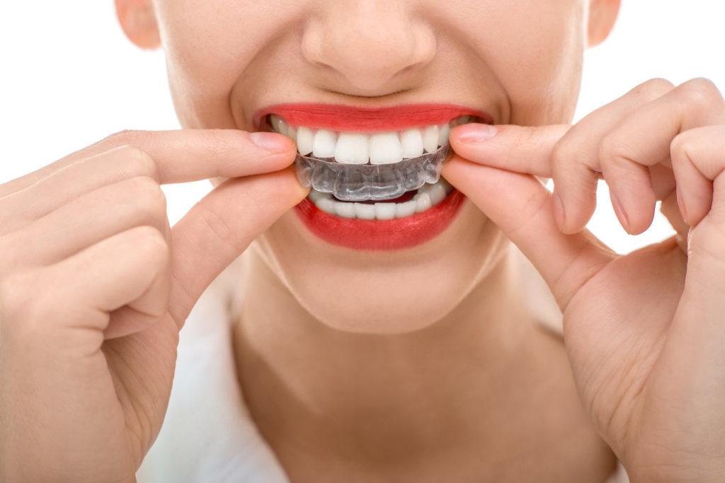 utilizzo di una mascherina invisibile per riallineamento dentale