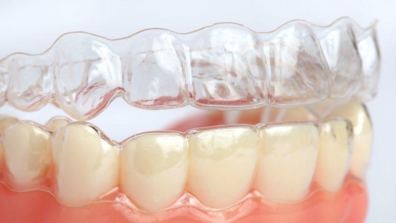 Come Risolvere Malocclusione Con Mascherina Denti Trasparente
