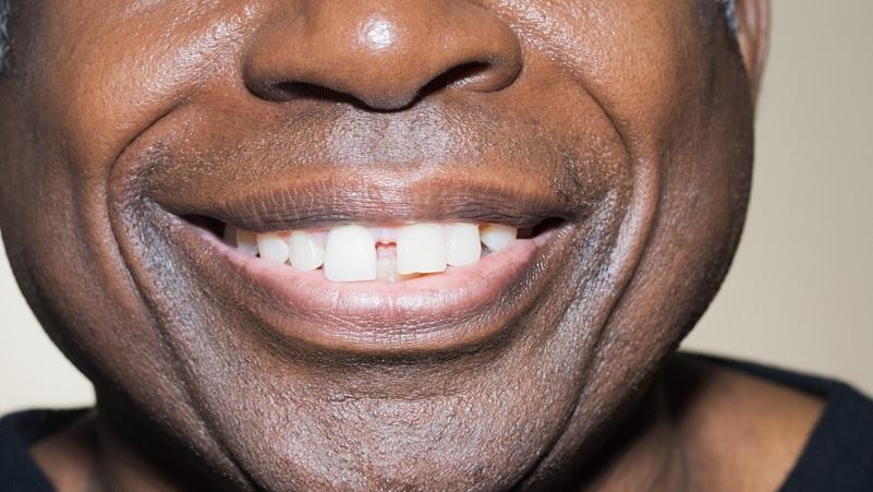 Diastema: Uno Spazio Tra I Denti Incisivi Da Correggere