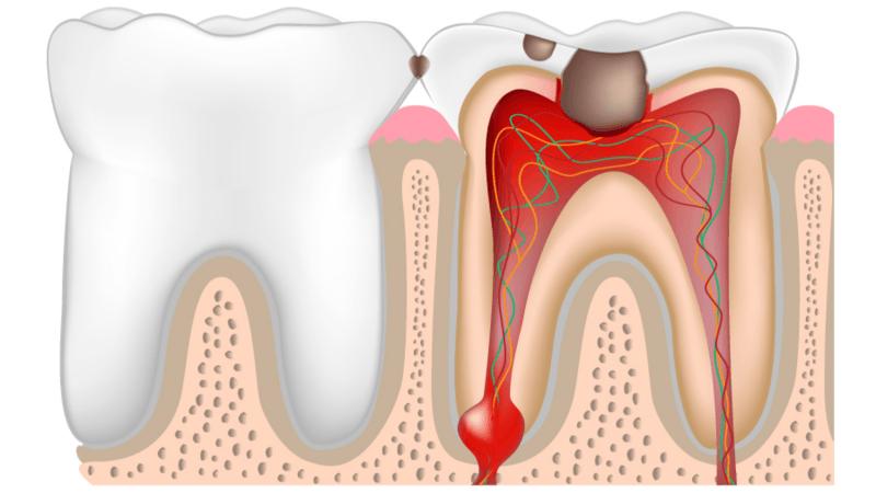 Cos'è La Pulpite Dentale E Come Si Cura