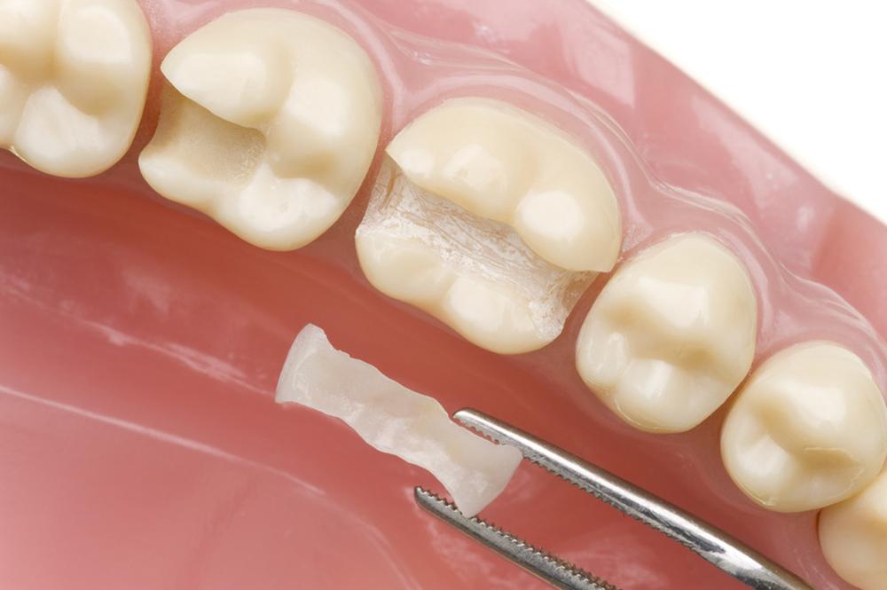 inserimento di un intarsio dentale in dente rovinato