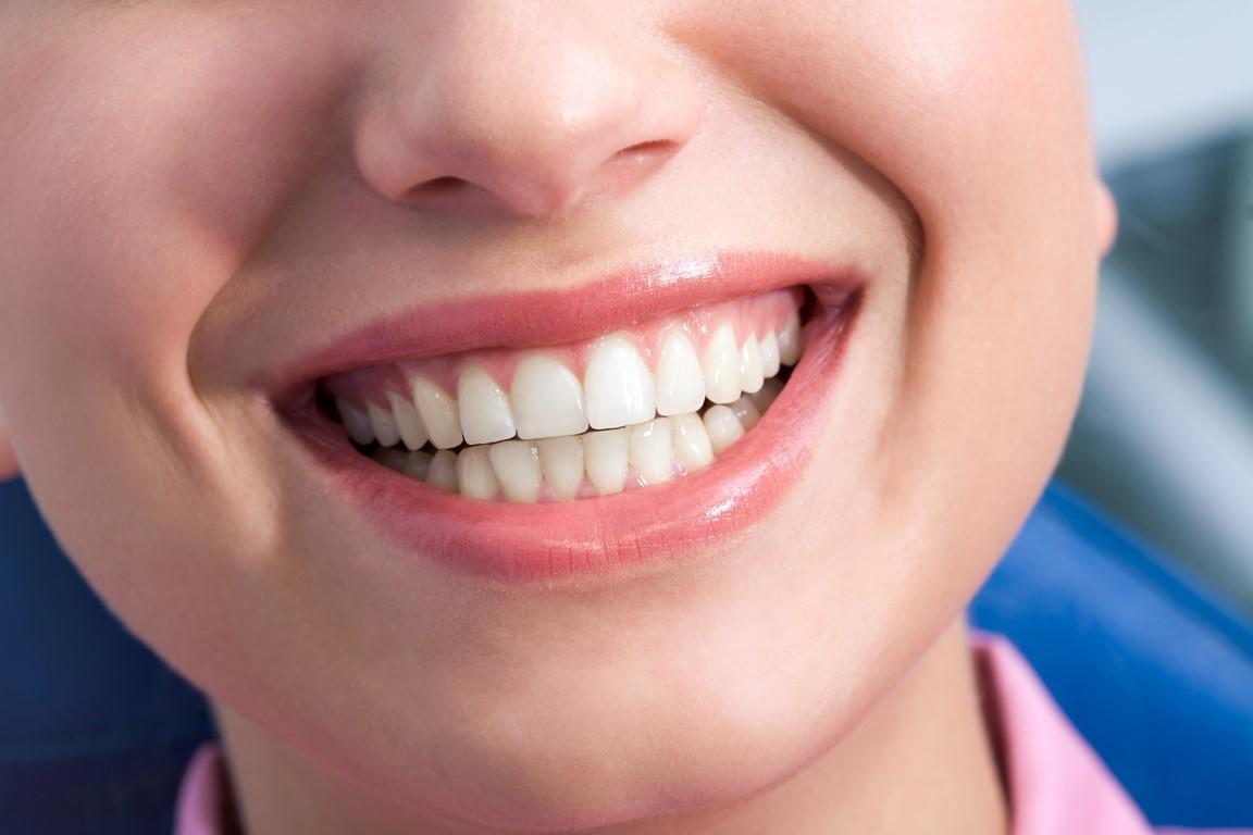bocca sana dopo igiene per trattare una gengivite
