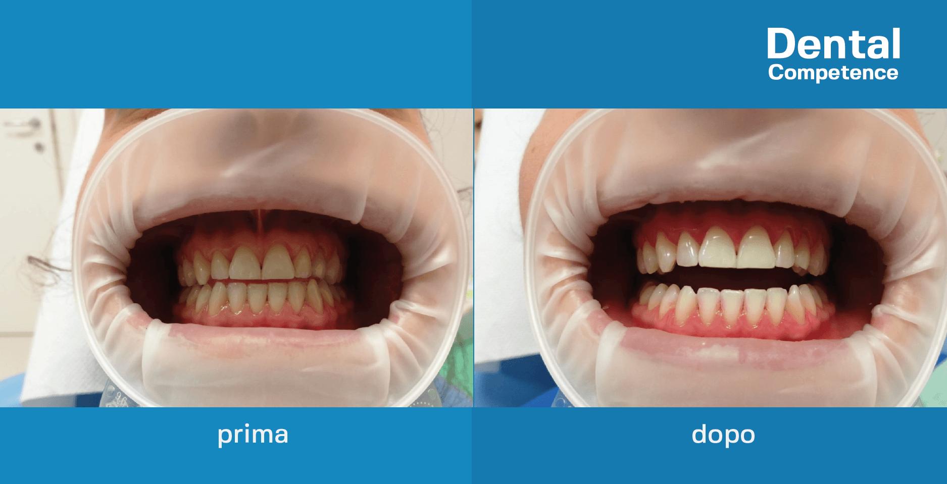 foto prima e dopo la realizzazione di un trattamento di sbiancamento professionale presso dental competence grosseto