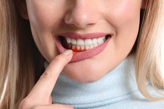 donna con gengivite ulcero necrotizzante